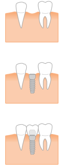 審美歯科イメージ写真